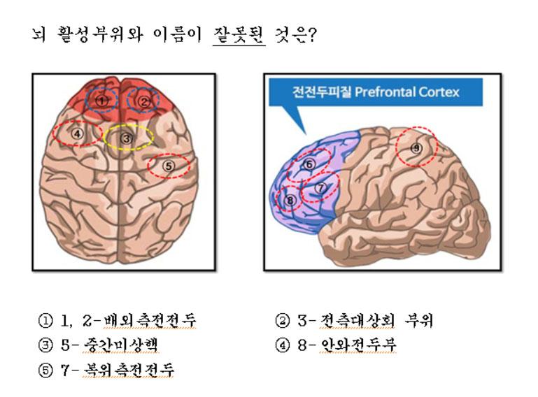 brainloc.jpg
